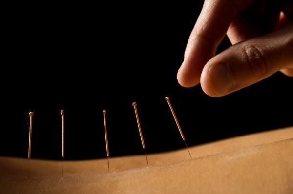 que-es-la-acupuntura