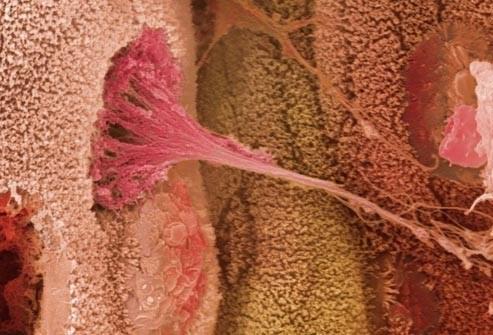 que-es-la-colitis-ulcerosa