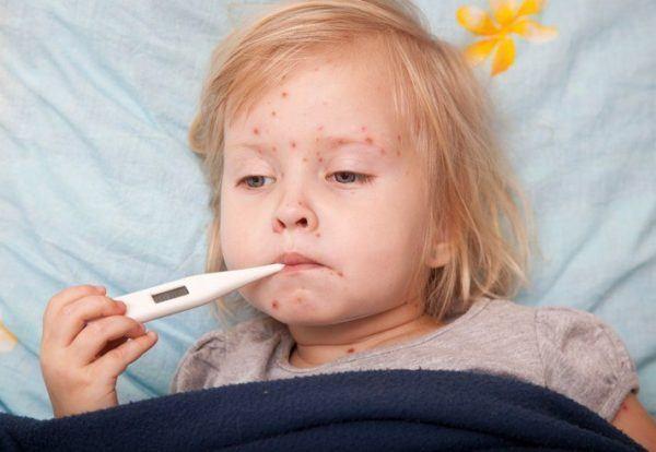 Que es la varicela sintomas causas tratamiento