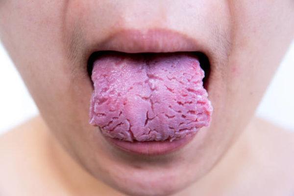 Que es lengua fisurada