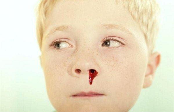 que-hacer-cuando-sangra-la-nariz