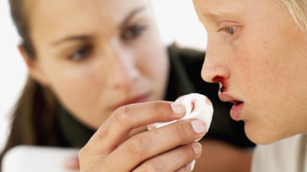 que-hacer-cuando-te-sangra-la-nariz