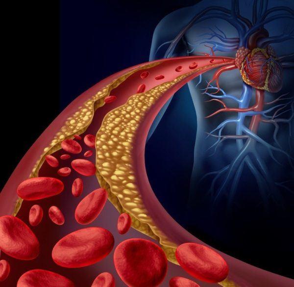 Que son las grasas saturadas niveles altos de colesterol