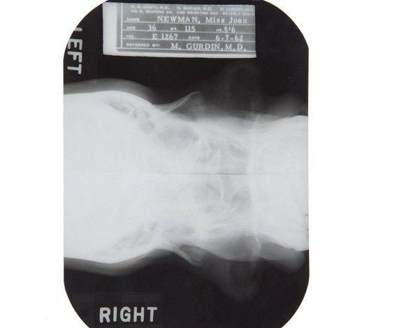 radiografias-que-demuestran-que-marilyn-monroe-estuvo-embarazada-se-opero-la-barbilla-y-tuvo-un-golpe-en-la-nariz-radiografia-2