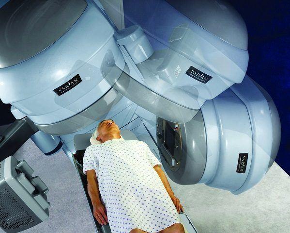 Los efectos secundarios de la radioterapia