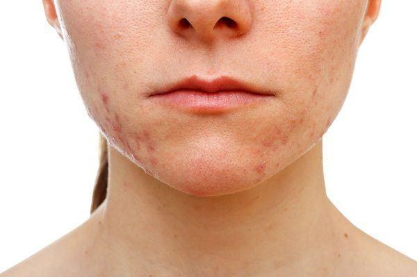 roacutan acne