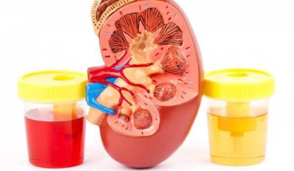 sangre-en-la-orina-hematuria-riñones
