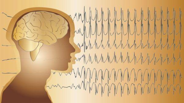 Secuelas del ictus cerebral