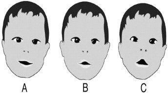 Síndrome Moebius