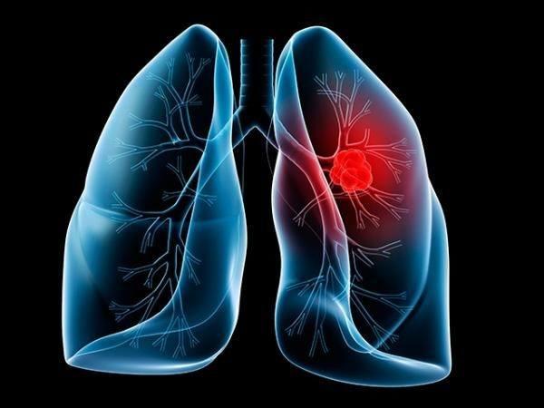 sintomas cancer pulmon