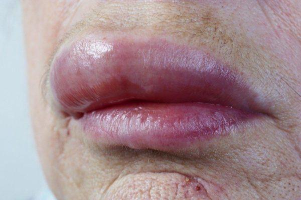 Sintomas de la urticaria cronica