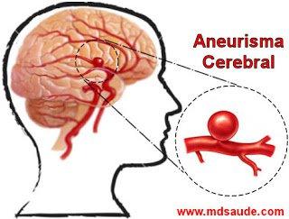 sintomas-del-aneurisma-cerebral-y-tratamiento-dilatacion
