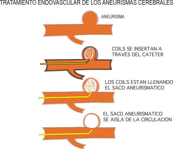 sintomas-del-aneurisma-cerebral-y-tratamiento-embolacion