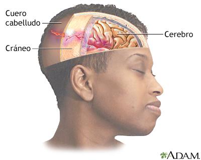 sintomas-del-aneurisma-cerebral-y-tratamiento-trauma