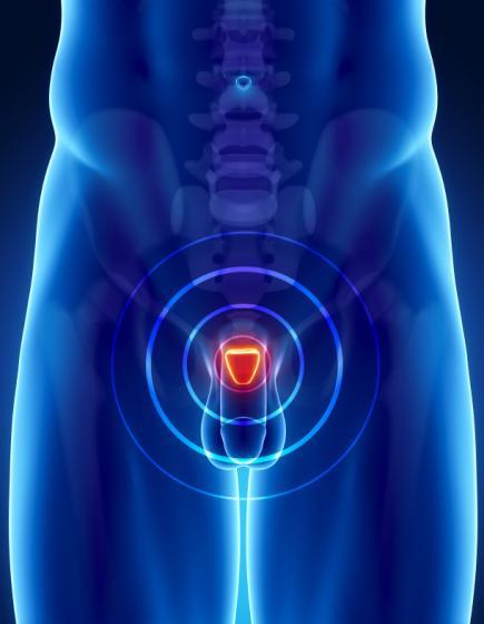 sintomas-del-cancer-de-prostata-flujo-orina-debil-o-interrumpido