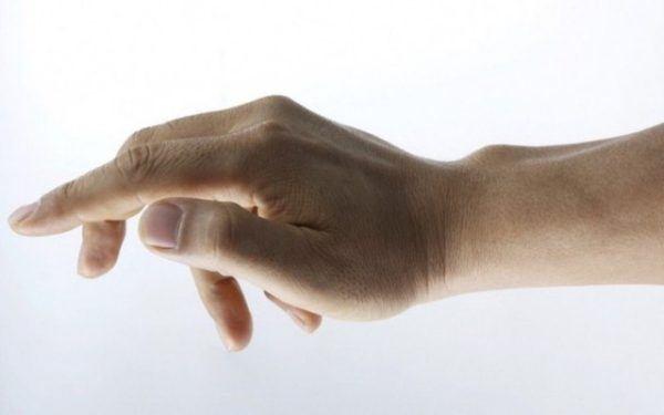 síntomas-del-dedo-en-gatillo