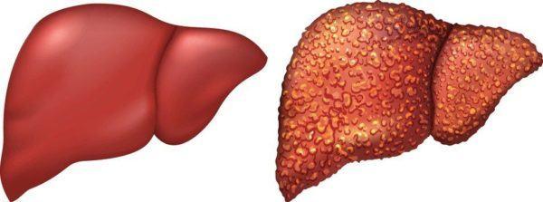 Sintomas del higado graso hepatitis