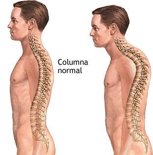 sintomas-del-parkinson-encorvamiento-de-la-espalda - copia