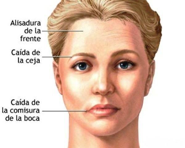 sintomas-del-parkinson-paralisis-facial - copia