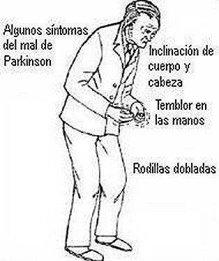 Parkinson Y Estres
