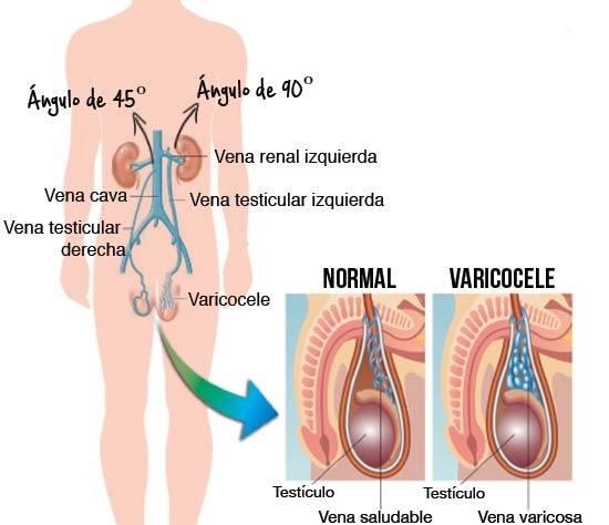 sintomas-del-varicocele-causas-y-tratamiento-comparacion