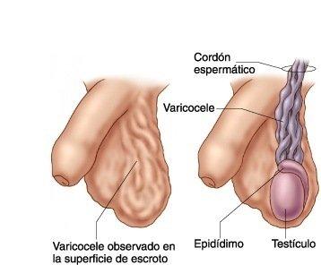 sintomas-del-varicocele-causas-y-tratamiento-dibujo