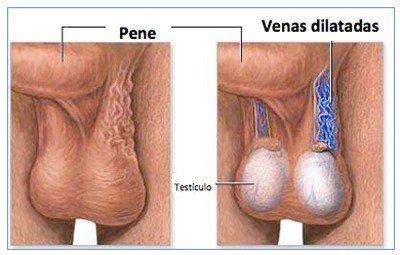 sintomas-del-varicocele-causas-y-tratamiento-vasodilatacion