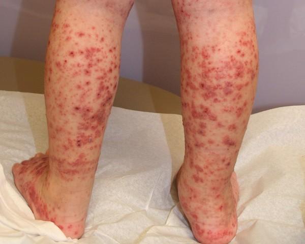 sintomas enfermedad purpura