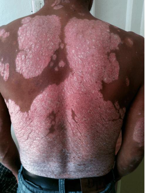 Las pieles de plátano de la psoriasis
