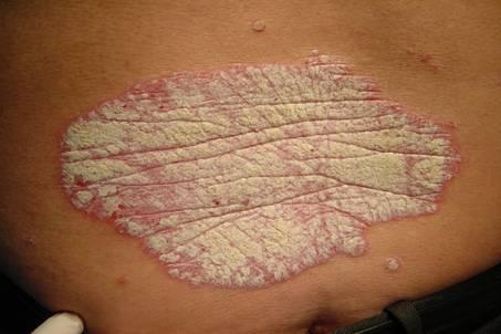 Los afrechos a atopicheskom la dermatitis