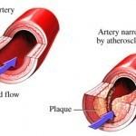 sintomas-trigliceridos-altos-2