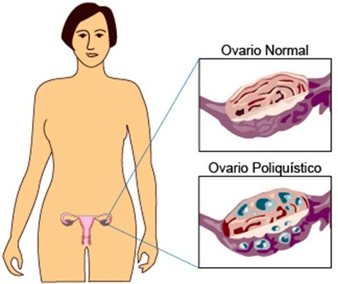 SOP y la infertilidad