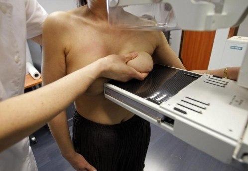tamoxifeno-en-cancer-de-mama-mamografia