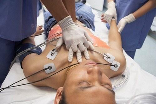 taquicardia-tratamiento