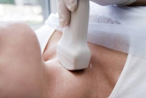 Hipertiroidismo sintomas