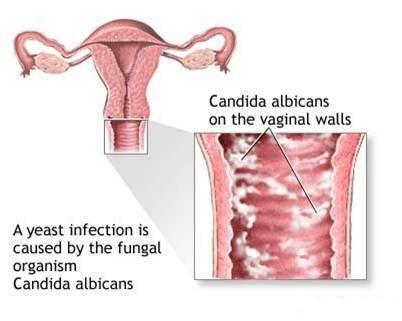 tipos-de-flujo-vaginal-candida