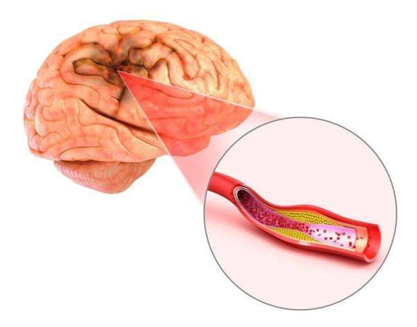 Tipos de ictus cerebrales