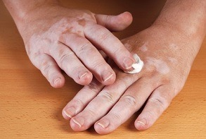 tipos-de-vitiligio-cremas
