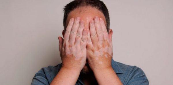 tipos-de-vitiligio-depresion