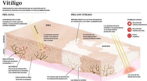 tipos-de-vitiligio-piel