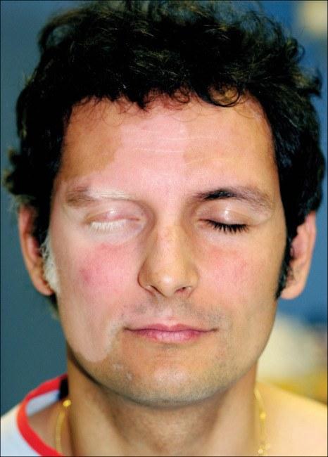 tipos-de-vitiligio-unilateral