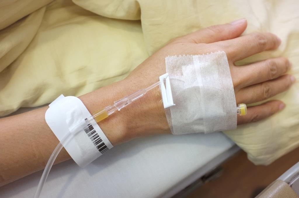 Tratamiento del ictus cerebral cateterismo