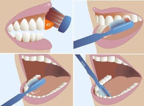 tratamiento halitosisi-cepillado dental