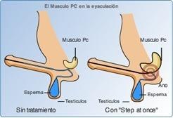tratamientos eyaculación precoz
