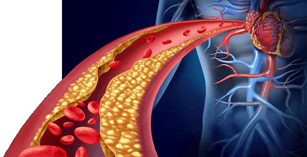 trigliceridos-altos-hipertrigliceridemia