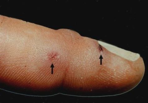 ¿Qué es la Tularemia?