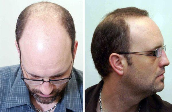 un-farmaco-hace-que-un-hombre-calvo-vuelva-a-tener-pelo-tratamiento-de-prueba