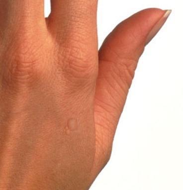 Las estampas del hongo sobre los dedos de los pies