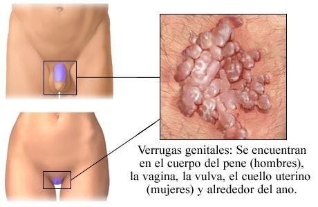 Síntomas y signos de los condilomas