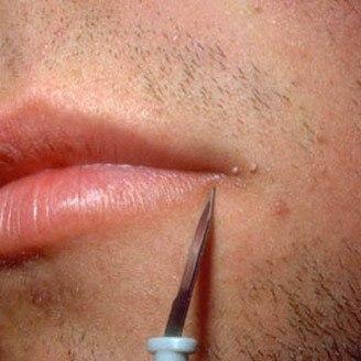 El ácido de nicotina sheynyy la osteocondrosis